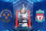 التشكيل المتوقع لمباراة ليفربول وشروزبري في كأس الاتحاد الإنجليزي اليوم