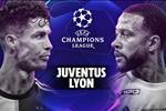 التشكيل المتوقع لمباراة يوفنتوس وليون اليوم في دوري أبطال أوروبا