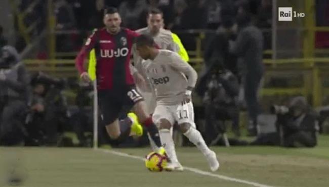 كوبري دوجلاس كوستا الممتع فى مباراة يوفنتوس وبولونيا